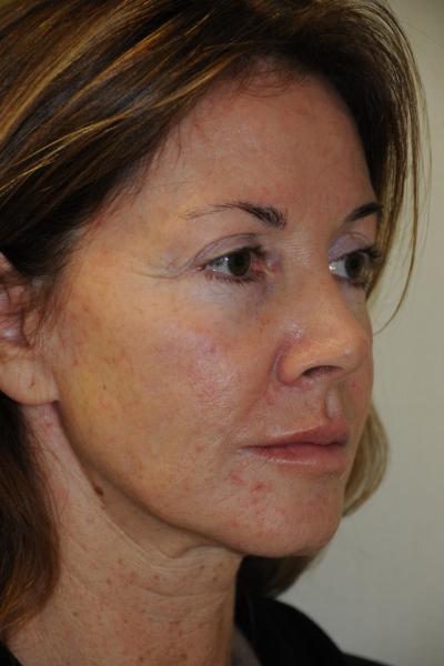 Facelift Patient 06 Before