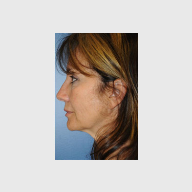 One Stitch Facelift Patient 02 Before - 3