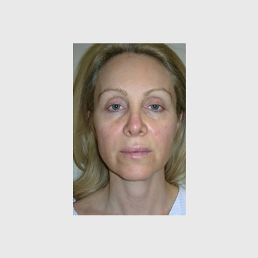One Stitch Facelift Patient 06 Before