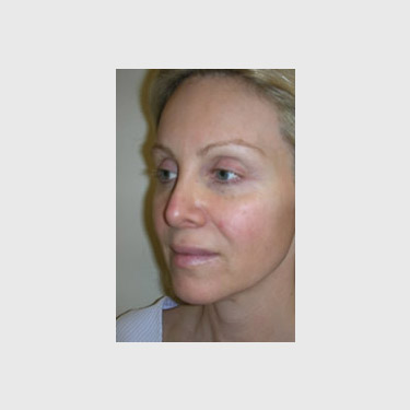One Stitch Facelift Patient 06 Before - 2