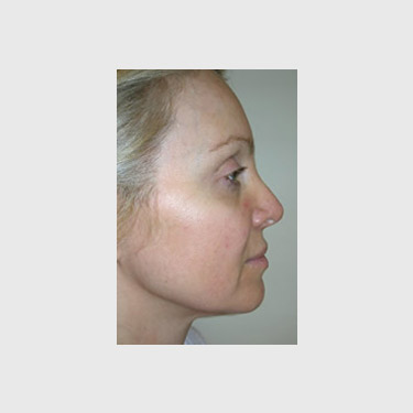 One Stitch Facelift Patient 06 Before - 3
