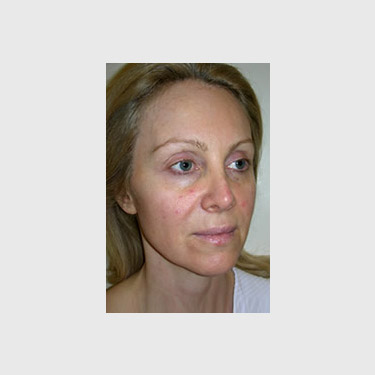 One Stitch Facelift Patient 06 Before - 4