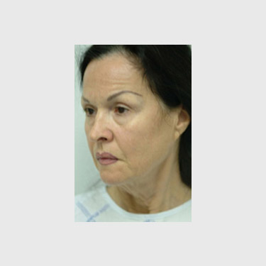 One Stitch Facelift Patient 07 Before - 2