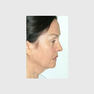 One Stitch Facelift Patient 07 Before - 3