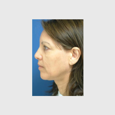 One Stitch Facelift Patient 08 Before - 3