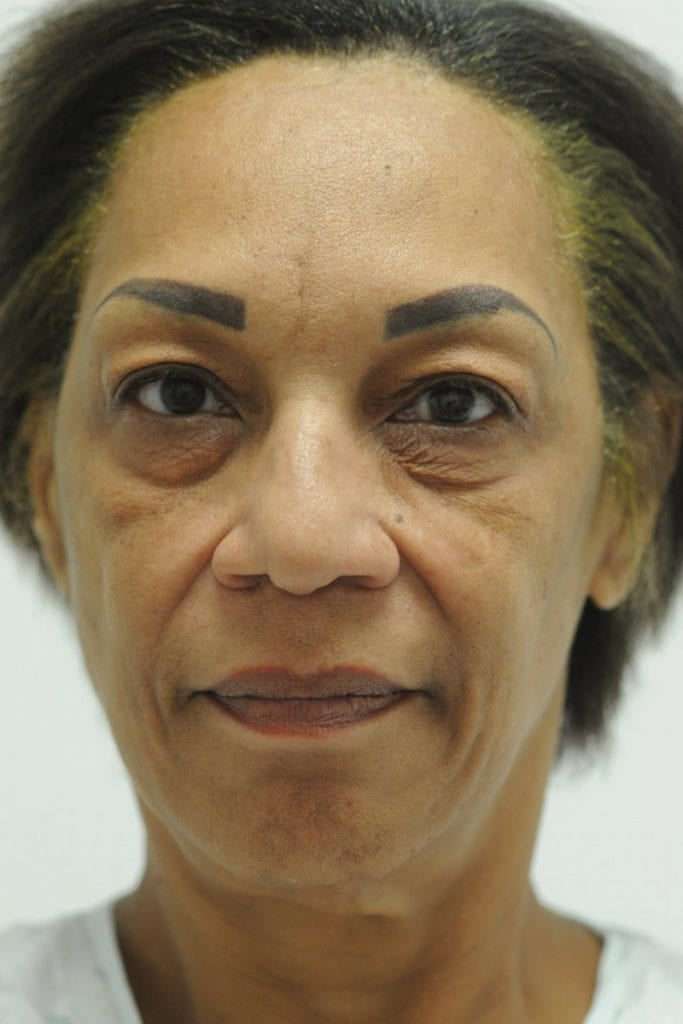 Vertical Facelift Patient 06 Before