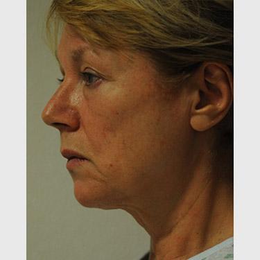Vertical Facelift Patient 10 Before - 3