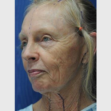Vertical Facelift Patient 07 Before - 2