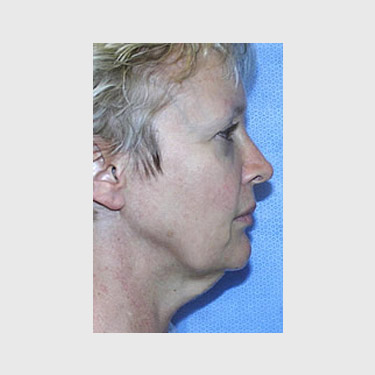 Vertical Facelift Patient 08 Before - 2