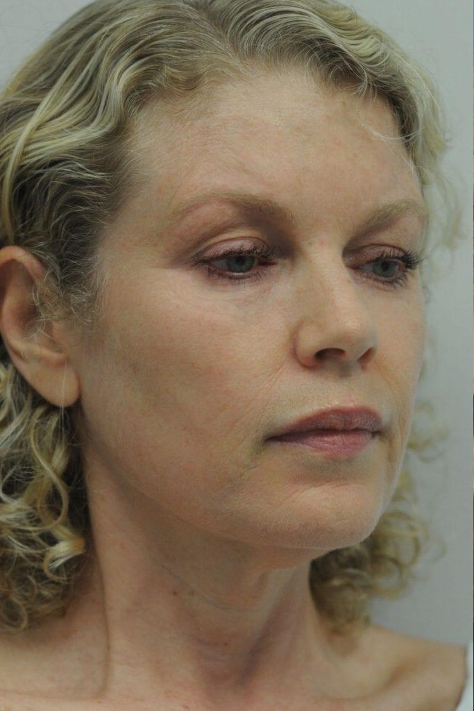 Facelift Patient 01 Before - 5