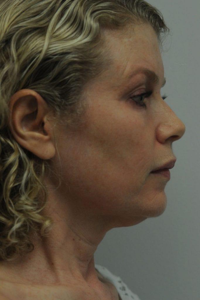 Facelift Patient 01 Before - 4