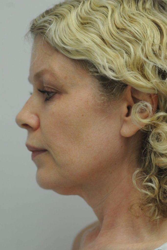 Facelift Patient 01 Before - 2