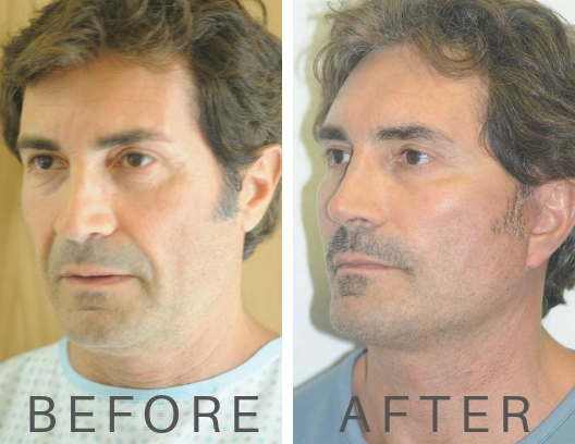 before and after male facelift2