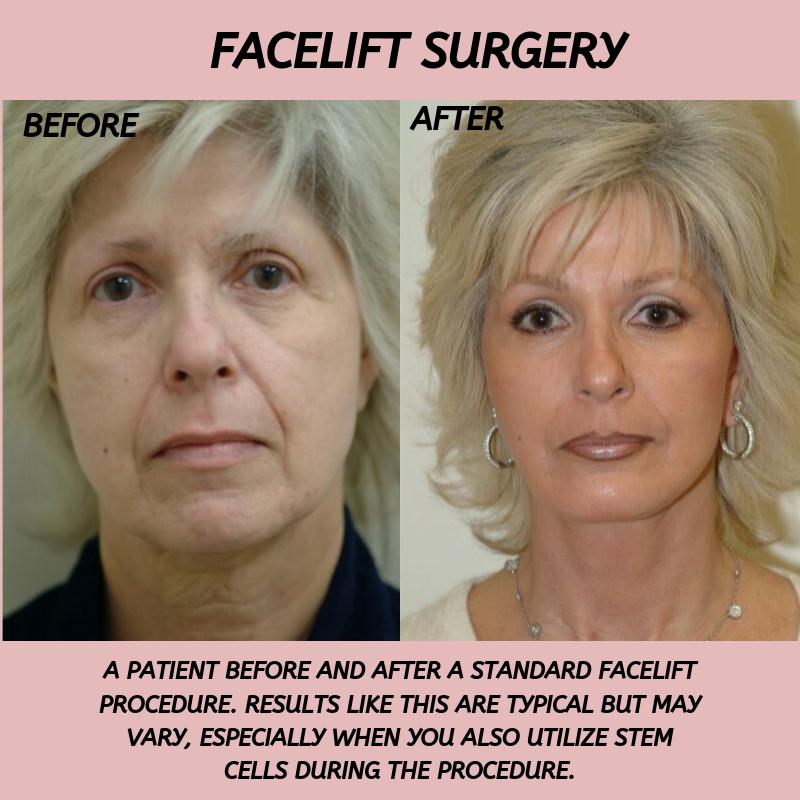 Female Non Surgical Facial