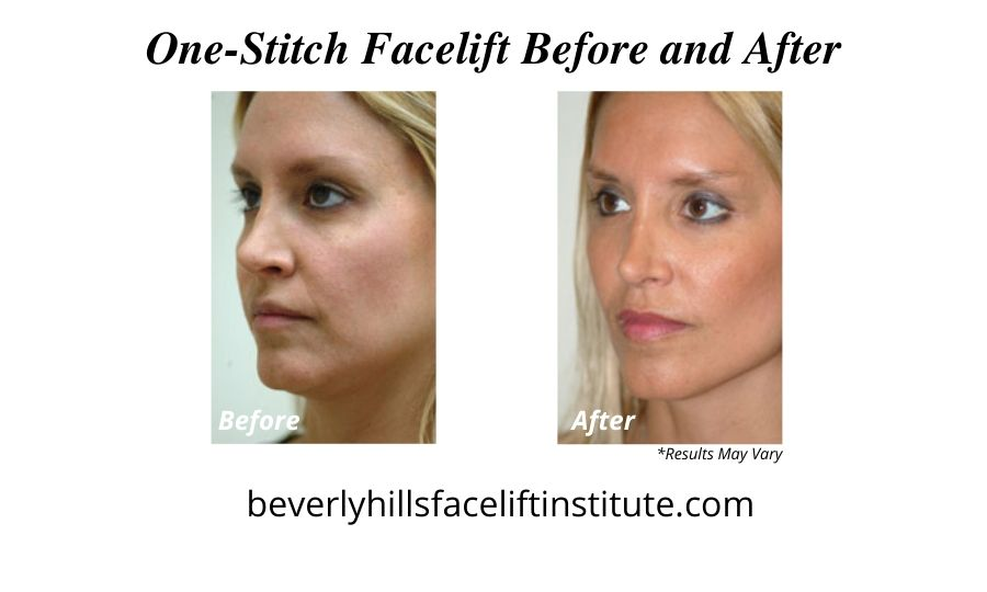 A woman before and after her one-stitch facelift.